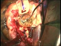 The Technique of Aortic Root Replacement
