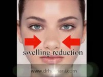 How to Tape Nose After Rhinoplasty advised by Dr Hosnani