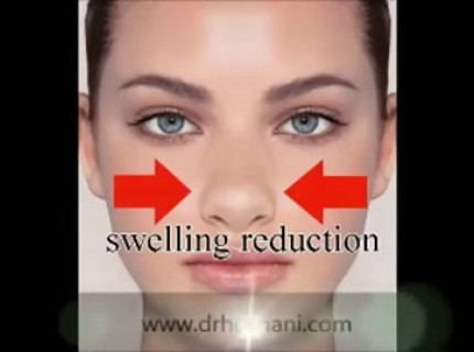 How To Tape Nose After Rhinoplasty Advised By Dr Hosnani Video Medtube Net