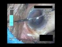Cataract Surgery VII - Part 4