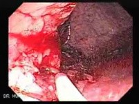 Endoscopic Resection of Giant Tubulo-Villous of the rectum (14 of 35)