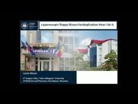 Laparoscopic Floppy Nissen Fundoplication: How I Do It