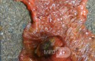 Ascending Colon Intussusception due to a Adenocarcinoma (4 of 6)