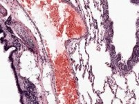 Lung - Histology