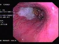 Carcinoma of the Gastric Body - Endoscopy