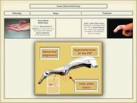 Common Hand Injuries: Part-1