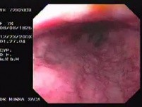 Hemorrhage due status post rubber band ligation of esophageal varices (23 of 25)