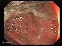 Ulcerative Colitis Complicating Colon Cancer (1 of 4)