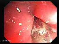 Endoscopic view of Rectal Stalked Polyp (6 of 7)