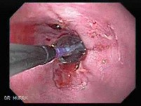Endoscopic Baloon Dilation Of The Esophageal Stricture - Position Of The Inflated Baloon - 1/8