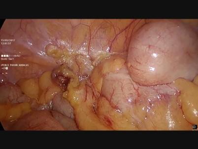 Right Hemicolectomy Medtube