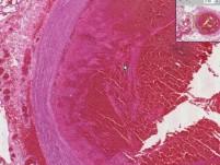 Lung - Thromboembolus (Thromboembolism)