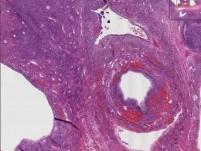 Polycystic ovarian disease