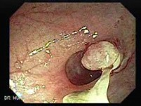Polyp Inside Of A Diverticulum (7 of 12)
