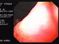 Giant Gastric Ulcer - Endoscopy (4 of 5)
