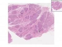 Breast - Hyperplasia Of Pregnancy