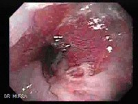 Hiatal Hernia - Above Is An Esophageal Stricture - 2/2