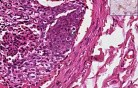 tumor emboli - Histopathology of lung