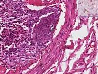 tumor emboli - Histopathology of lung