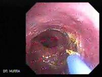 Barrett's Esophagus of long segment (20 of 24)