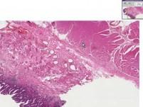 Barrett Esophagus 2