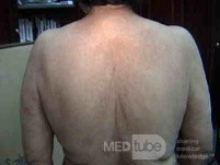 Extensive Acanthosis Nigricans due to rectal carcinoma (5 of 7)