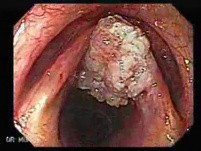 Squamous cell carcinoma of the larynx (1 of 3)