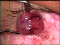 Fugo Blade - inferior oblique myomectomy