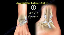 Anatomy And Injuries Of The Lateral Ankle