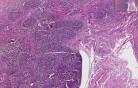 Liver - Primary Biliary Cirrhosis