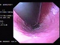 Hemorrhage due status post rubber band ligation of esophageal varices (4 of 25)