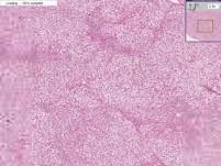 Liver - Fatty Change 3