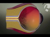 Vitrectomy, Membrane Peeling And Scleral Buckle