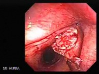 Squamous cell carcinoma of the larynx (3 of 3)