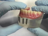 4-Implant Ball Attachment Overdenture - Model Demonstration