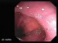 Barrett's Esophagus of long segment (16 of 24)