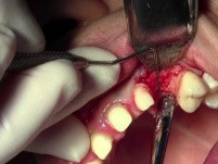 Flap Design & Pilot Hole - Implant Surgery, #11 Site