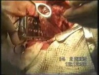 Lobectomy - Lung Cancer Surgery