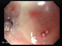 Stenosis of the esophagus caused by radiotherapy with cobalt to a carcinoma (2 of 2 )