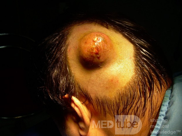 Dermoid Cyst Of Scalp