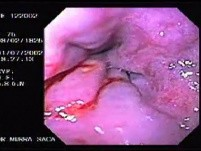 Hemorrhage due status post rubber band ligation of esophageal varices (11 of 25)