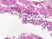 Lung (view 1) - bone (view 2) - liver (view 3)
