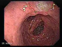 Gatsric Adenocarcinoma of the Lesser Curvature After Gastrectomy Billroth II (2 of 3)