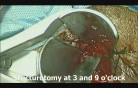 Stapled Trans Anal Resection of Rectal Stricture (STARR)