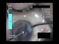 Cataract Surgery VI - Part 3