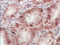 Early Gastric Cancer (20 of 21)