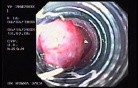 Banding of Esophageal Varices - Technique