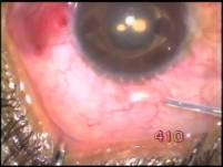 A iris claw lens - 15 years after surgery