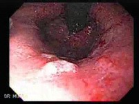 Endoscopic Baloon Dilation Of The Esophageal Stricture - Retroflexed Meneuver