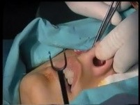 Rhinoplasty - T-excision for Tip Rotarion